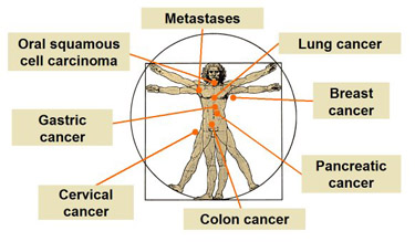 Body Cancers